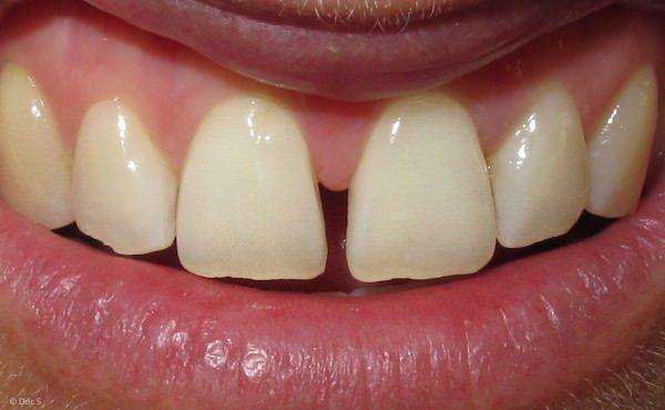 Diastema: Lücke zwischen den Schneidezähnen