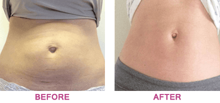 A lady's stomach before and after non-surgical body contouring