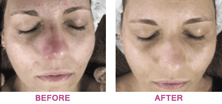 Lady's face before and after skin peel