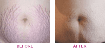 Lady's stomach before and after body peel treatment
