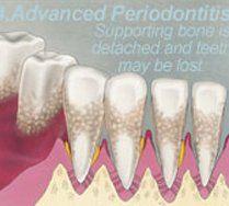 treatment for gums