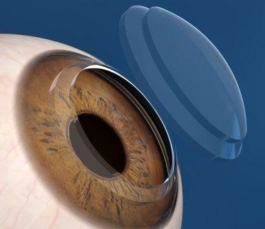 Apparato Oculare