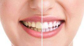 denti metà sbiancati, bocca di una ragazza, sbiancamento dentale