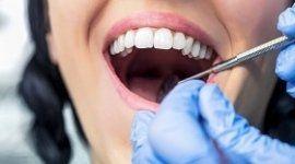 mani con guanti blu, paziente con la bozza aperta, strumenti dentistici