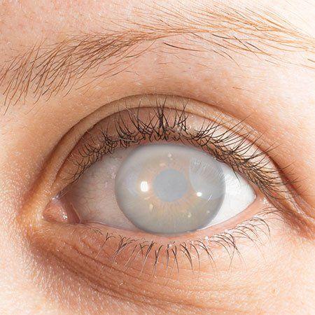 vista di un occhio con l'iride offuscata