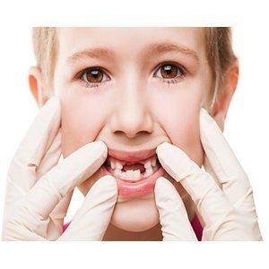 bambina con denti mancanti dal dentista