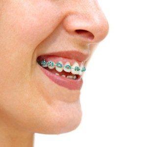 ragazza con apparecchio ai denti mentre sorride