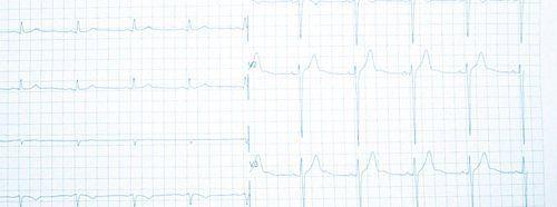 Risultato di un elettrocardiogramma