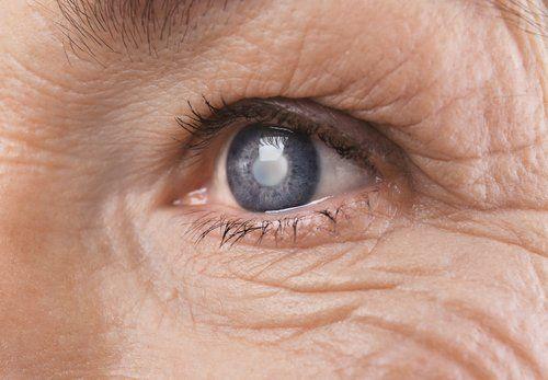 primo piano di un occhio di una persona anziana che soffre di cataratta