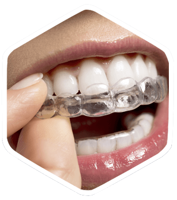Invisalign Braces Jersey City, NJ