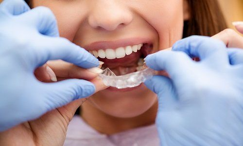 Dentista che mostra al paziente come utilizzare apparecchio ortodontico mobile per la correzione dentale
