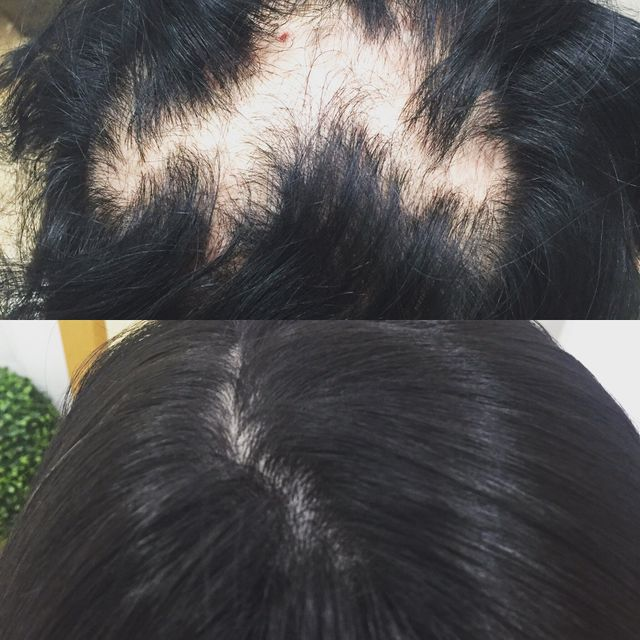 before and after female hair loss replacement