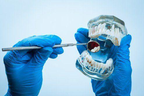 dentista controllando una protesi dentale