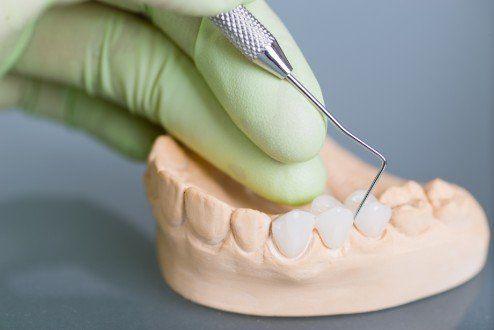 dentista lavorando su una protesi dentale
