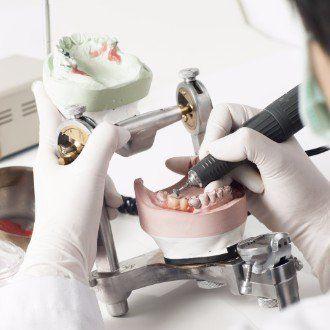 dentista strutturando una protesi dentale