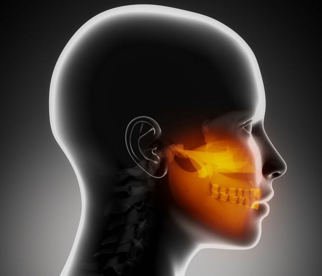 Image of muscles that cause jaw pain, from our center in Honolulu, HI