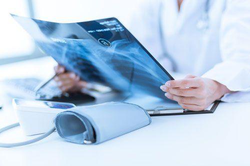 una donna in camice mentre guarda una radiografia toracica