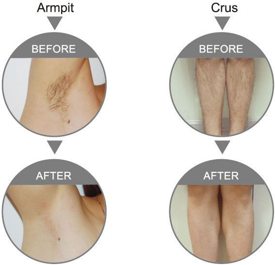 Hair Removal/Waxing in Shepparton | Nu Beauty Therapy