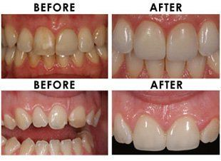 Cosmetic dentistry - Swinton, Greater Manchester - Castledale Ceramics - teeth