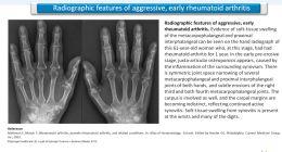 articolo sulla reumatologia