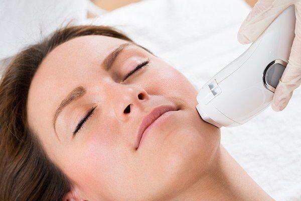 una donna a occhi chiusi durante un trattamento di epilazione al viso