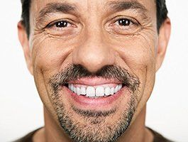 Man smiling after mobile denture services in Whakatane, NZ