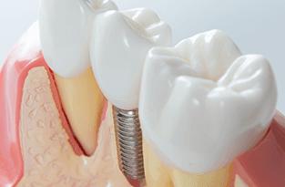 Modellini di tre denti di cui uno con vite al posto della radice