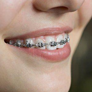 orthodontics treatment