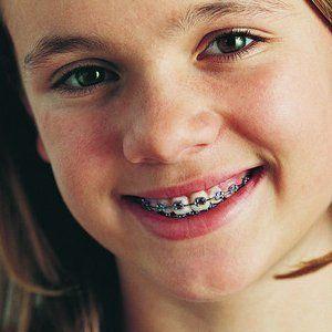 fixed braces treatment