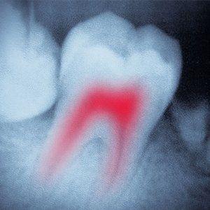 Endodontics treatment