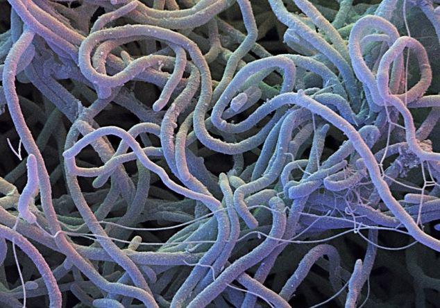 Streptomyces_gram positive