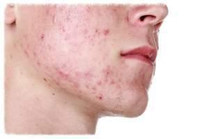 Propionibacteria acne