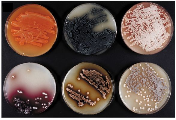 Streptomyces slides