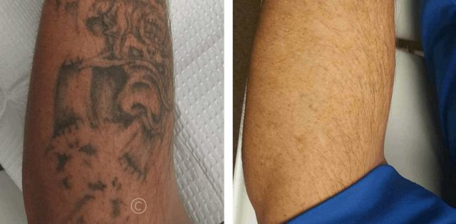 Tattoo Removal | Louisville KY | Take It Off Laser Tattoo