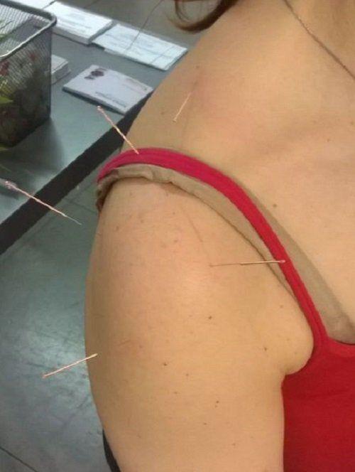 Spalla con aghi di agopuntura