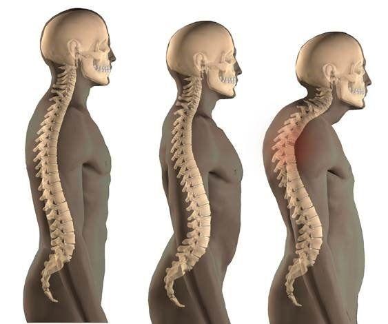 Back Pain Management Odessa, TX