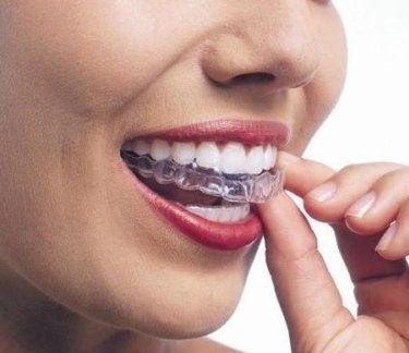 Apparecchio per la correzione dei propri denti