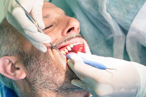 Bleeding teeth during tartar and plaque removal