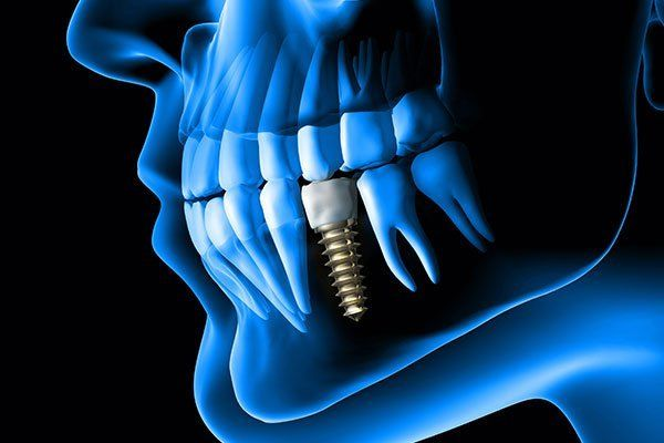 X ray view of denture with implant
