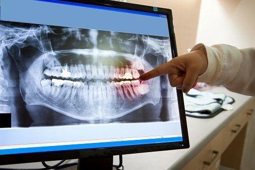Radiografia della bocca
