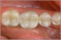 tooth removal for filling