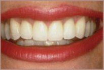 Tooth whitening services