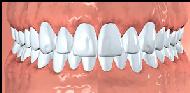 tissue around the teeth