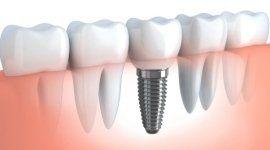 sostituzione denti mancanti, impianti dentali,  denti fissi