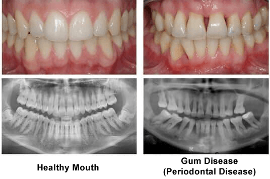 Gum Disease Treatment Tampa Fl The Hyde Park Center