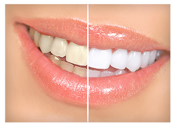 Teeth Whitening Victor NY