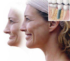 Teeth Whitening Victor NY