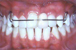 Cosmetic Dentistry Victor NY