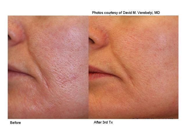skin tightening treatments in charlotte