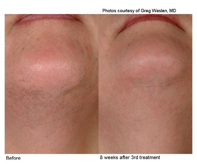 laser hair removal treatments charlotte